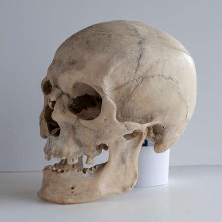 Anatomical  real human skull, closeup. Angle view three quarters. 免版税图像