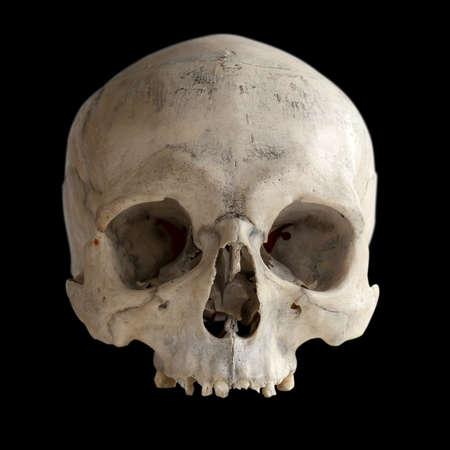 Un teschio umano senza mascella, isolato su fondo nero. Anatomia umana.
