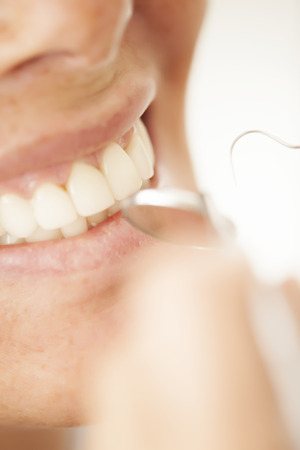 mouth smile: Perfect smile, dental care