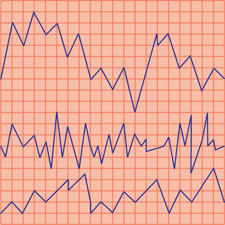 Cardiogram Stock Vector - 18092535