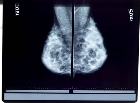 nipple breast: x-ray mammogram