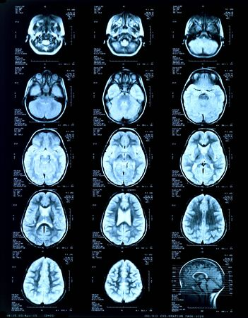 childrens head Magnetic risonance image MRI Stock Photo