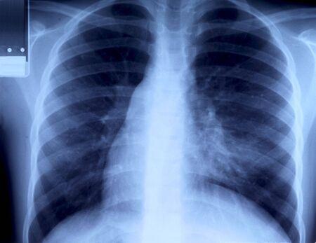polmone: radiografia del torace