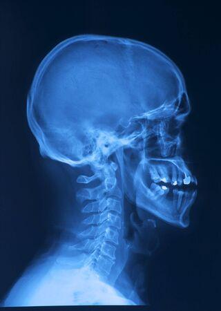 roentgenogram: skull x-ray image