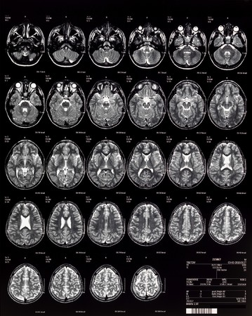 Brain MRI Children 10 Years Stock Photo - 7691313