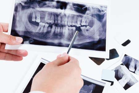 mouth cavity: Panoramic dental x-ray image of teeth. Dentist