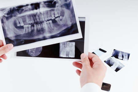 oral cavity: Panoramic dental x-ray image of teeth. Dentist