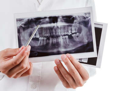 Dentist  with dental X-ray picture of human jaws isolated on white background