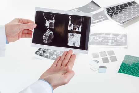voluminous: Panoramic x-ray jaw. A dentist holding an x-ray the patients tooth and indicates the problem