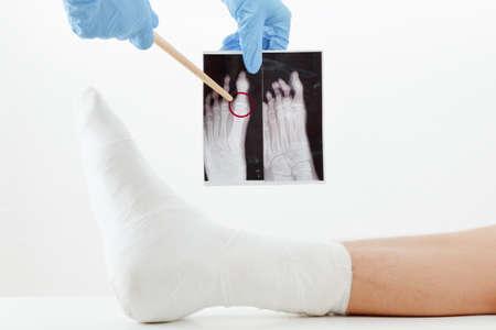 Il medico esamina l'immagine dei raggi x, gamba rotta del paziente in gesso che si trova sullo strato, su fondo bianco Archivio Fotografico - 83680524