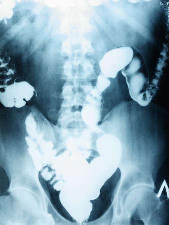 X-ray film image of plain abdomen , colon