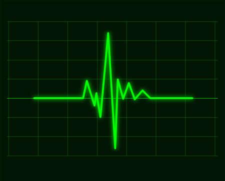 Vector illustration of green cardiac waveforms graph of heart cardiogram, ecg or electrocardiogram