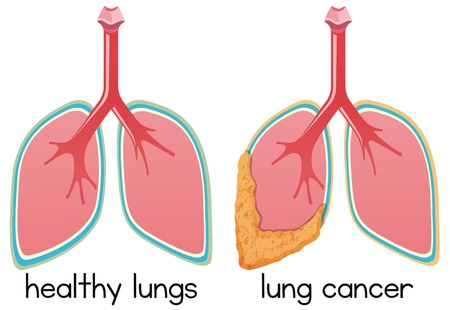 A Cartoon of Lung Condition illustration