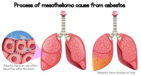 Process of mesothelioma cause of asbestos illustration Illustration