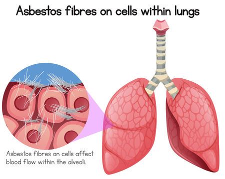 Asbestos Fibres on Cells Within Lungs illustration Illustration
