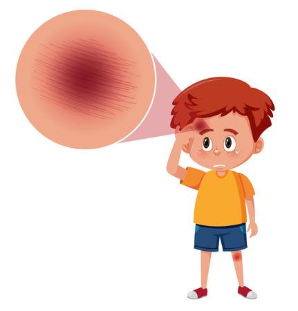 A boy with scab on forehead illustration 版權商用圖片 - 123947063