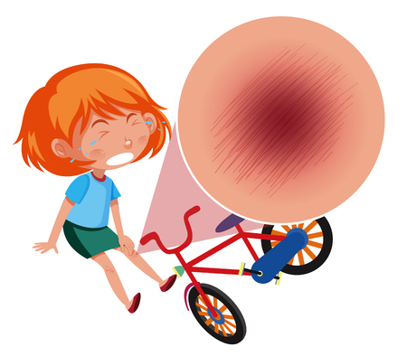 A girl falling off the bike illustration