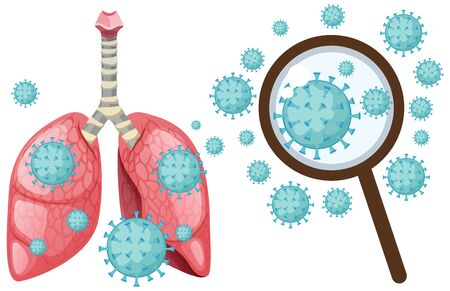 Coronavirus cell in human lungs on white background illustration 向量圖像