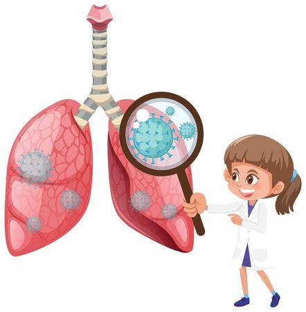 Diagram showing human lungs with coronavirus cells illustration Vecteurs