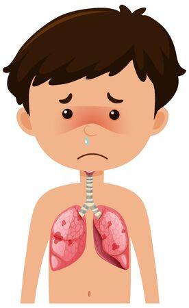 Sick boy from coronavirus with pneumonia illustration Stock Illustratie