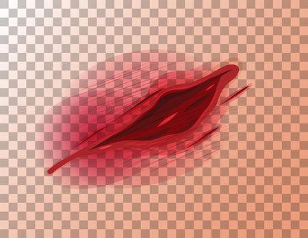 Lacerations skin wound on transparent background illustration Ilustracje wektorowe