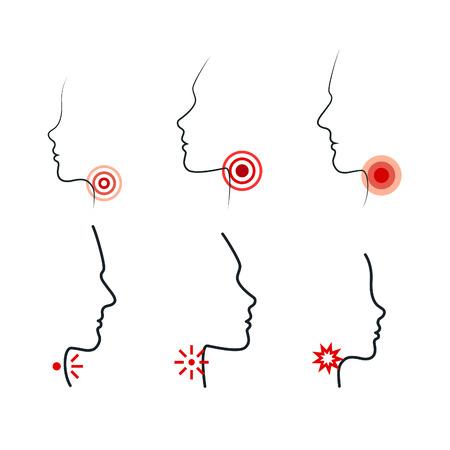 Halsschmerzen Vektor-Illustrationen. Männer, Frauen und Kinder fühlen Schmerzen im Hals. Profil Silhouetten mit Schmerzstellen. Icon Design für die medizinische Verpackung von Tabletten, Pillen, Sprays oder Lutschtabletten.