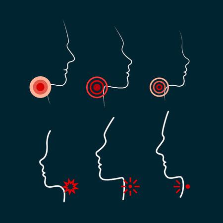Personnes Silhouettes avec Ache emplacements. Sore Throat illustrations vectorielles. Hommes, Femmes et Profils Visage Kid. Icon Design pour l'emballage médical de comprimés, pilules, de spray ou Pastilles impact local.
