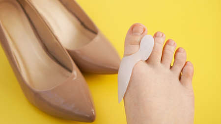 Treatment and prevention of hallux valgus. Silicone finger separator. Legs on a yellow background. Shoes on a blurred background