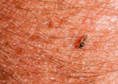 moscerino: Zanzara Braccio Mordere primo piano dimostrando come sono.