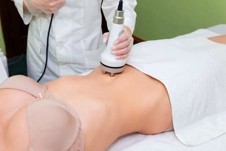 Radiofrequency lifting of problem areas of the body. RF abdominal lifting.