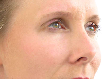 health concern: Womans eyes with white background