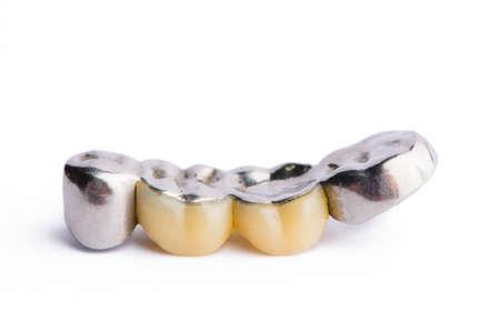 Dental prosthetics. Isolated on white background.