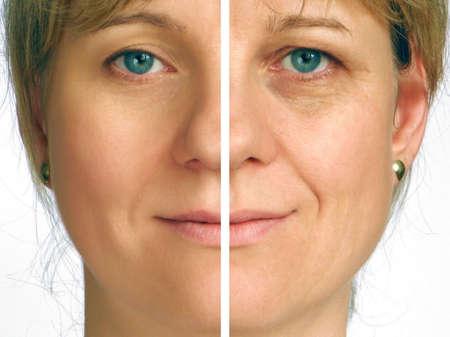 Corrección de las arrugas en la mitad de la cara Foto de archivo - 4280549