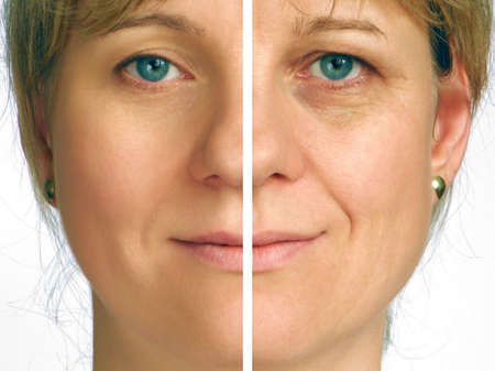 Correction of wrinkles on half of face photo