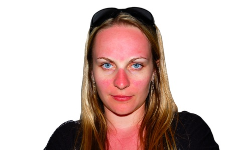 Funny looking sunburns on a girls face that was not covered by sun glasses. Isolated, over white.