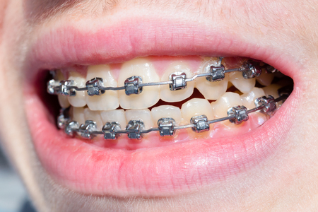 lopsided: Mouth of boy with bracket teeth and lips