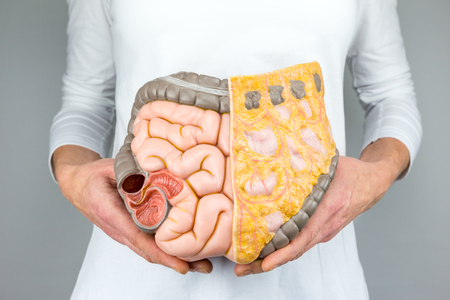 fat belly: Woman holding model of human intestines in front of body on white background