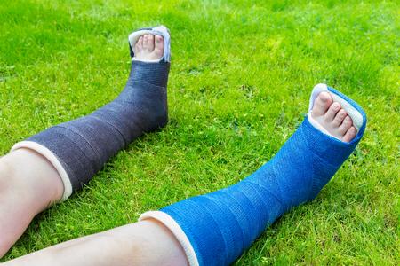 Two gypsum legs of child on grass Stockfoto