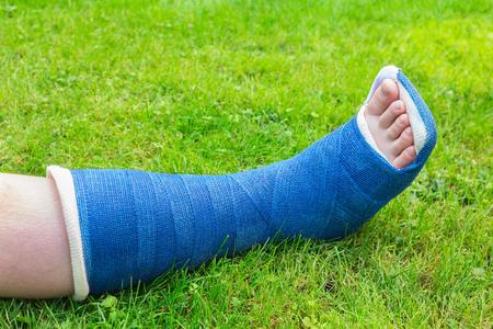 Ein blauer Gipsbein Kind auf grünem Gras Standard-Bild - 68774872