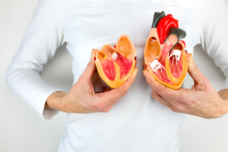 Woman holds open model heart at white body Stock Photo