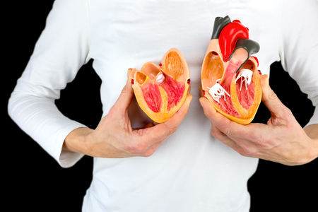 Woman holding open human heart model at white body