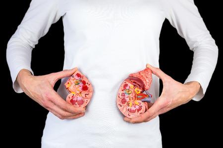 Frau, die Hälften des Nierenmodells am weißen Körper hält, der auf schwarzem Hintergrund lokalisiert wird Standard-Bild