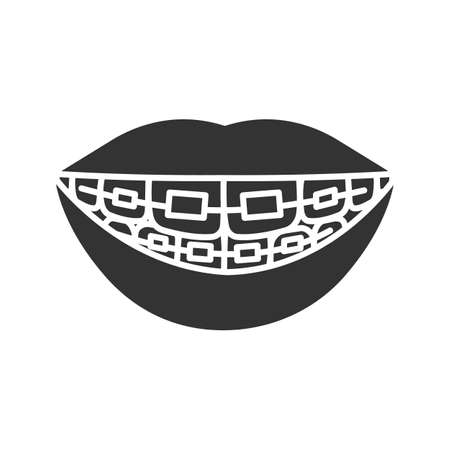 Dental braces glyph icon. Teeth aligning. Silhouette symbol. Negative space. Vector isolated illustration