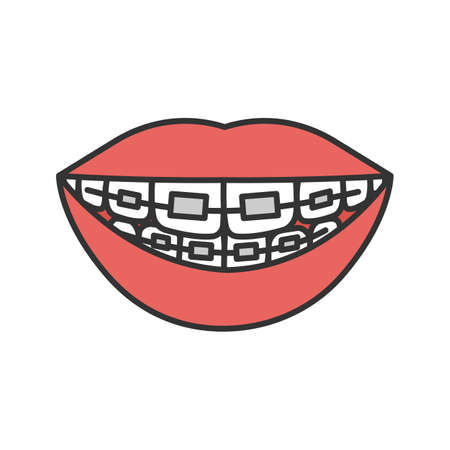 Dental braces color icon. Teeth aligning. Isolated vector illustration Stock Illustratie