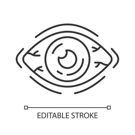 Allergic conjunctivitis linear icon. Eye inflammation. Thin line illustration. Contour symbol. Seasonal pollen allergy symptom. Bacterial infection. Vector isolated outline drawing. Editable stroke