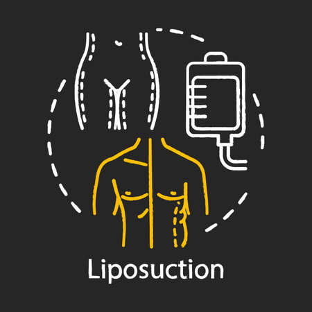 Liposuction chalk icon. Fat suction. Slim body silhouette. Plastic surgery procedure. Fat removal. Surgery subspecialty. Medical instrument. Isolated vector chalkboard illustration Ilustração