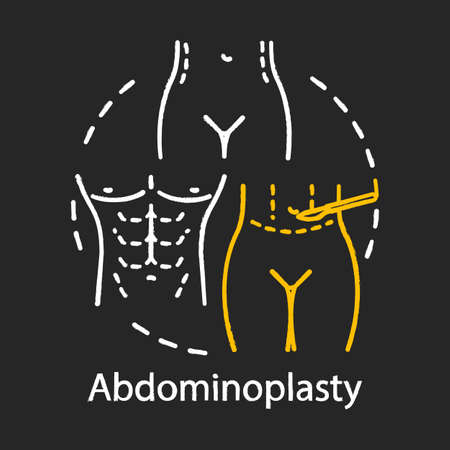 Abdominoplasty chalk icon. Aesthetic cosmetic surgery idea thin line illustration. Tummy tuck operation. Lower body lift. Plastic surgery subspecialty. Isolated vector chalkboard illustration