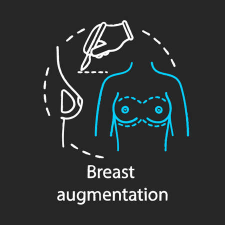 Breast augmentation chalk icon. Surgical enlargement breast. Silicone implants. Mammoplasty. Plastic surgery subspecialty. Medical instrument. Isolated vector chalkboard illustration Ilustração
