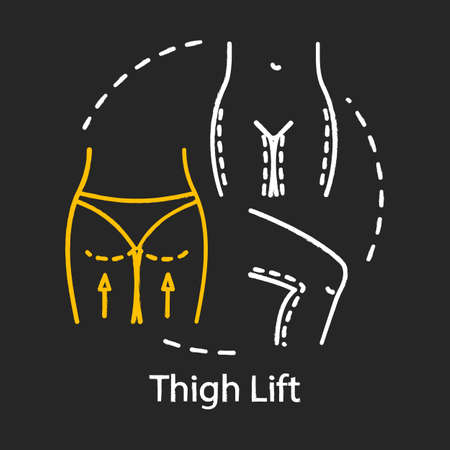 Thigh lift chalk icon. Body reshape surgery. Better-proportioned contours. Smooth skin. Thighplasty. Plastic surgery subspecialty. Isolated vector chalkboard illustration