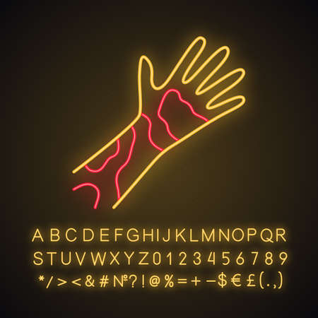 Contact dermatitis, hives neon light icon. Skin redness, rash, irritation. Glowing sign with alphabet, numbers and symbols. Phytophotodermatitis, poisonous plant allergy. Vector isolated illustration Illusztráció